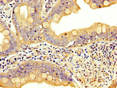 Immunohistochemistry image at a dilution of 1:300 and staining in paraffin-embedded human small intestine tissue performed on a Leica BondTM system. After dewaxing and hydration, antigen retrieval was mediated by high pressure in a citrate buffer (pH 6.0) . Section was blocked with 10% normal goat serum 30min at RT. Then primary antibody (1% BSA) was incubated at 4 °C overnight. The primary is detected by a biotinylated secondary antibody and visualized using an HRP conjugated SP system.