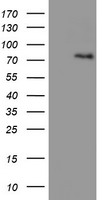 HEK293T cells were transfected with the pCMV6-ENTRY control (Left lane) or pCMV6-ENTRY LIMK1 (Right lane) cDNA for 48 hrs and lysed. Equivalent amounts of cell lysates (5 ug per lane) were separated by SDS-PAGE and immunoblotted with anti-LIMK1.
