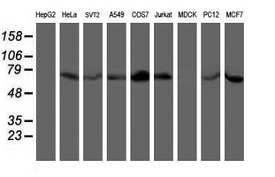 Western blot of extracts (35 ug) from 9 different cell lines by using anti-LIMK1 monoclonal antibody.