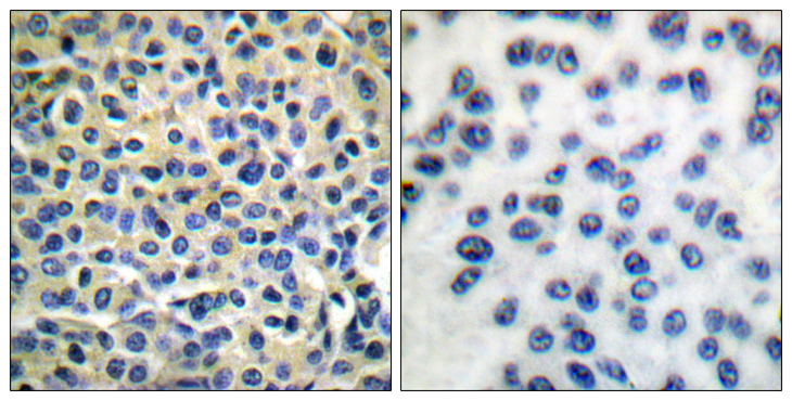 Immunohistochemistry analysis of paraffin-embedded human breast carcinoma tissue, using LIMK1/2 Antibody. The picture on the right is blocked with the synthesized peptide.