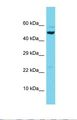 Western blot of Human 721_B. SCARB2 antibody dilution 1.0 ug/ml.  This image was taken for the unconjugated form of this product. Other forms have not been tested.