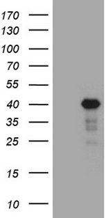 LIMS2 Antibody - HEK293T cells were transfected with the pCMV6-ENTRY control. (Left lane) or pCMV6-ENTRY LIMS2. (Right lane) cDNA for 48 hrs and lysed. Equivalent amounts of cell lysates. (5 ug per lane) were separated by SDS-PAGE and immunoblotted with anti-LIMS2. (1:2000)