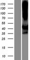 LIMS2 Protein - Western validation with an anti-DDK antibody * L: Control HEK293 lysate R: Over-expression lysate