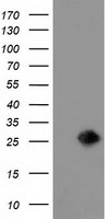 LIN7B Antibody - HEK293T cells were transfected with the pCMV6-ENTRY control (Left lane) or pCMV6-ENTRY LIN7B (Right lane) cDNA for 48 hrs and lysed. Equivalent amounts of cell lysates (5 ug per lane) were separated by SDS-PAGE and immunoblotted with anti-LIN7B.