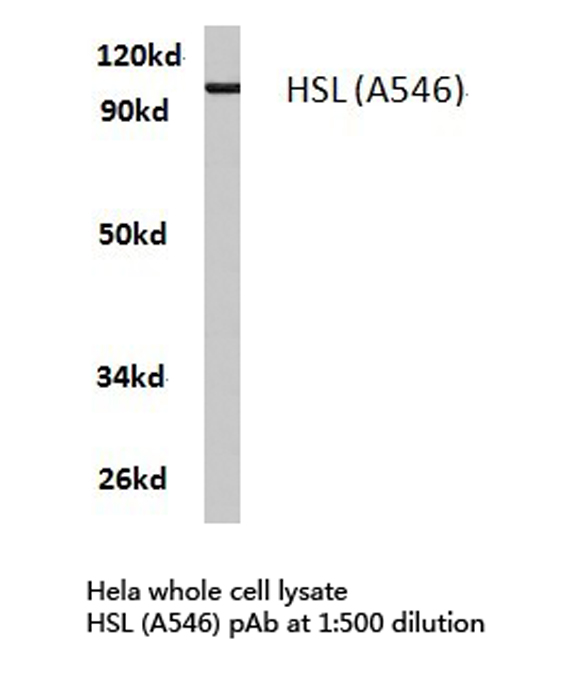 Western blot of HSL (A546) pAb in extracts from HeLa cells.