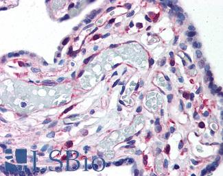 LIPG / Endothelial Lipase Antibody - Anti-LIPG antibody IHC of human placenta. Immunohistochemistry of formalin-fixed, paraffin-embedded tissue after heat-induced antigen retrieval. Antibody concentration 10 ug/ml.  This image was taken for the unconjugated form of this product. Other forms have not been tested.