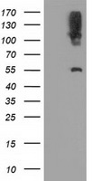 LIPG / Endothelial Lipase Antibody - HEK293T cells were transfected with the pCMV6-ENTRY control (Left lane) or pCMV6-ENTRY LIPG (Right lane) cDNA for 48 hrs and lysed. Equivalent amounts of cell lysates (5 ug per lane) were separated by SDS-PAGE and immunoblotted with anti-LIPG.