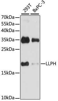 LLPH / C12orf31 Antibody - Western blot analysis of extracts of various cell lines, using LLPH antibody at 1:1000 dilution. The secondary antibody used was an HRP Goat Anti-Rabbit IgG (H+L) at 1:10000 dilution. Lysates were loaded 25ug per lane and 3% nonfat dry milk in TBST was used for blocking. An ECL Kit was used for detection and the exposure time was 30s.
