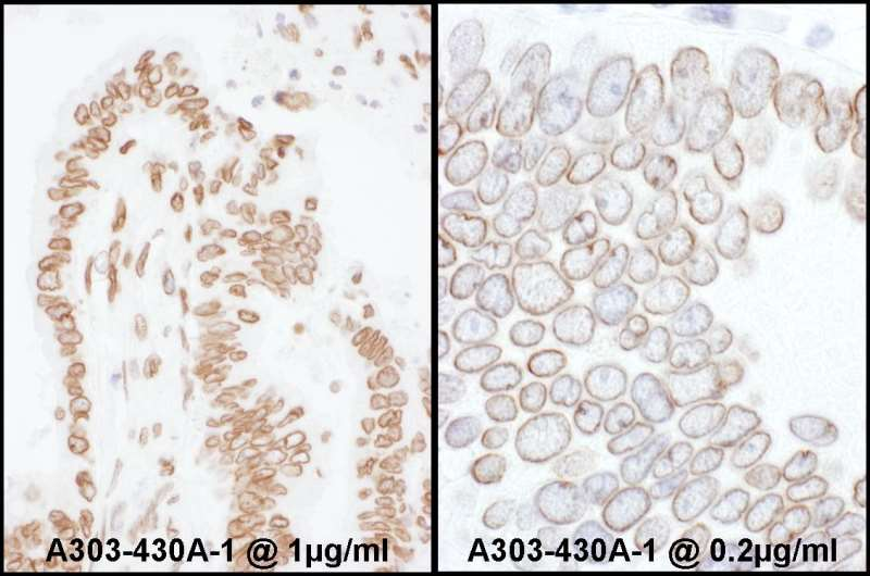 Detection of Human Lamin-A /C by Immunohistochemistry. Samples: FFPE sections of human colon carcinoma. Antibody: Affinity purified rabbit anti-Lamin-A/C used at a dilution of 1:200 (1 ug/ml) (left) and 1:1000 (0.2 ug/ml) (right). Detection: DAB.