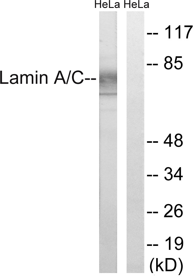 Western blot analysis of lysates from HeLa cells, treated with paclitaxel 1uM 24h, using Lamin A Antibody. The lane on the right is blocked with the synthesized peptide.