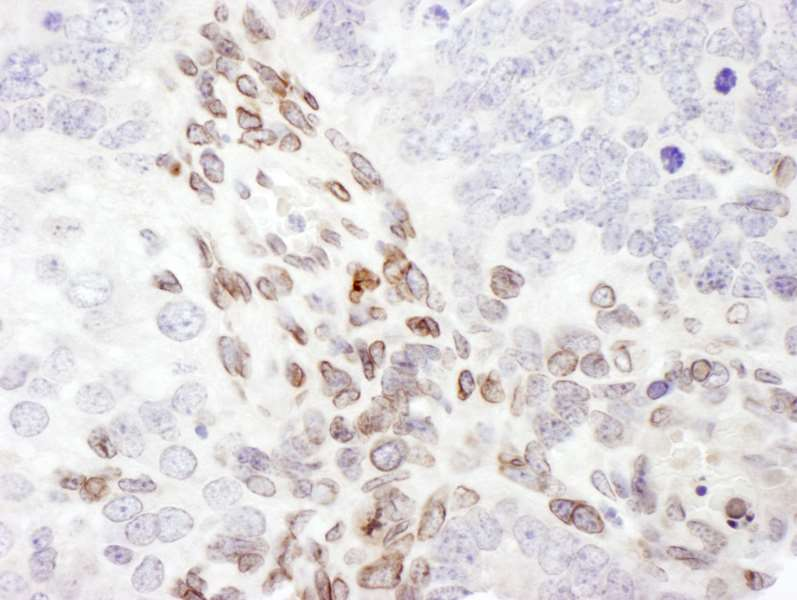 Detection of Mouse Lamin-A by Immunohistochemistry. Sample: FFPE section of mouse teratoma. Antibody: Affinity purified rabbit anti-Lamin-A used at a dilution of 1:200 (1 ug/ml). Detection: DAB.