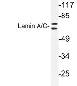 Western blot of Lamin A/C (R386) pAb in HeLa cells.