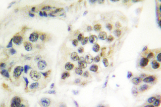 IHC of Lamin A/C (R386) pAb in paraffin-embedded human breast carcinoma tissue.