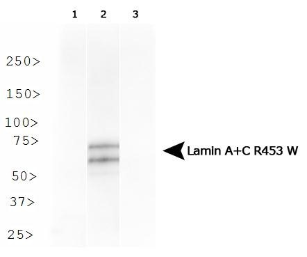 Western Blot: Lamin A + C R453W Antibody (12A-2F5) - Analysis of Lamin A + C R453W in HeLa cells transfected with Flag-tagged Lamin A 1) wild type, 2) R453W and 3) R482W.  This image was taken for the unconjugated form of this product. Other forms have not been tested.