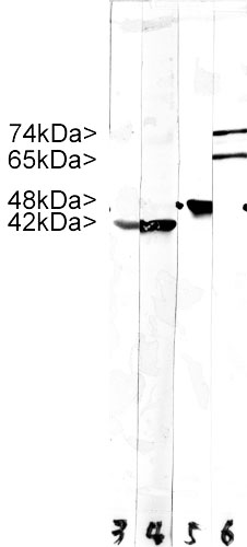 Stripe blots of crude HeLa cell extract stained with MCS-4C4. Note two strong clean bands at 74 kDa and 64 kDa, corresponding to Lamin A and C, in the lane labeled 6. Lane 5 was stained with our antibody to Enolase 1, which we will market shortly. Lanes 3 and 4 were reacted with 5J11, a monoclonal antibody to all six actin isotypes. Molecular weights of each protein are as indicated.