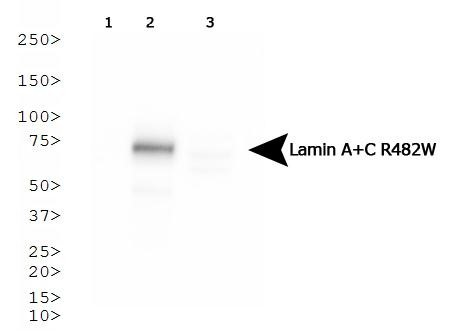 Western Blot: Lamin A + C R482W Antibody (5H8-B4) - Analysis of Lamin A + C R482W in HeLa cells transfected with Flag-tagged Lamin A 1) wild type, 2) R482W and 3) R453W.