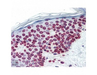 Immunohistochemistry showing Anti-Lamin A+C on formalin fixed paraffin embedded skin tissue