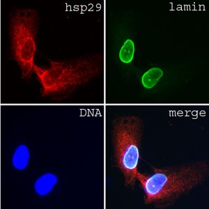 Immunofluorescence of human dermal fibroblasts stained with lamin A/C (clone JOL3)