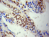 Immunohistochemistry of paraffin-embedded human breast tumor, showing staining of the nuclear envelope.