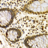 Immunohistochemistry of paraffin-embedded Human colon using Lamin A/C antibodyat dilution of 1:100 (40x lens).
