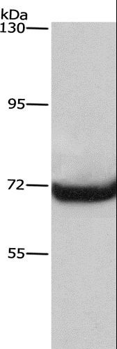 Western blot analysis of A431 cell, using LMNA Polyclonal Antibody at dilution of 1:430.