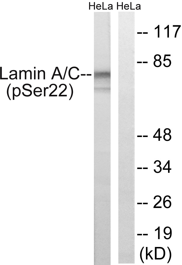 Western blot analysis of lysates from HeLa cells treated with paclitaxel 1uM 24h, using Lamin A (Phospho-Ser22) Antibody. The lane on the right is blocked with the phospho peptide.