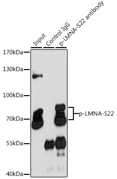 LMNA / Lamin A+C Antibody - Immunoprecipitation analysis of 200ug extracts of HeLa cells, using 3 ug Phospho-LMNA-S22 pAb. Western blot was performed from the immunoprecipitate using Phospho-LMNA-S22 pAb at a dilition of 1:1000. HeLa cells were treated by Paclitaxel (100 nM/ml) at 37°C for 20 hours.