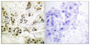 IHC of paraffin-embedded human breast carcinoma, using Lamin A/C (Phospho-Ser392) Antibody. The sample on the right was incubated with synthetic peptide.