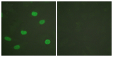 Immunofluorescence analysis of HeLa cells, using Lamin A/C (Phospho-Ser392) Antibody. The picture on the right is blocked with the phospho peptide.