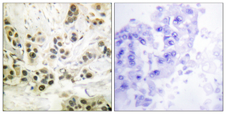 Immunohistochemistry analysis of paraffin-embedded human breast carcinoma, using Lamin A/C (Phospho-Ser392) Antibody. The picture on the right is blocked with the phospho peptide.