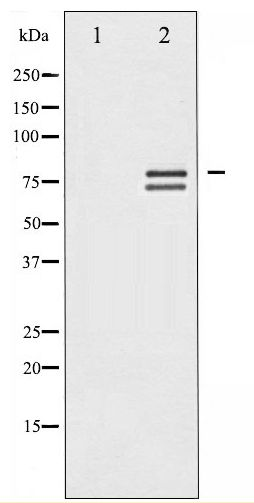 Western blot of Lamin A/C phosphorylation expression in HeLa whole cell lysates,The lane on the left is treated with the antigen-specific peptide.
