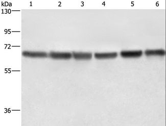 Western blot analysis of HeLa and HT-29 cell, human fetal liver tissue and 231 cell, K562 cell and human bladder transitional cell carcinoma tissue, using LMNB1 Polyclonal Antibody at dilution of 1:750.