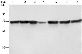 Western blot analysis of HeLa and HT-29 cell, human fetal liver and testis tissue, 231 and K562 cell, human bladder transitional cell carcinoma tissue, using LMNB1 Polyclonal Antibody at dilution of 1:750.
