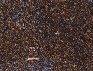 Immunohistochemistry of Human tonsil using LMNB1 Polyclonal Antibody at dilution of 1:60.