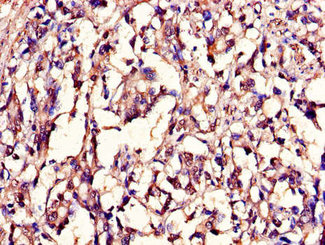 Immunohistochemistry of paraffin-embedded human gastric cancer using LMNB1 Antibody at dilution of 1:100