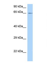 LMOD1 antibody Western blot of Mouse Thymus lysate. Antibody concentration 1 ug/ml.  This image was taken for the unconjugated form of this product. Other forms have not been tested.