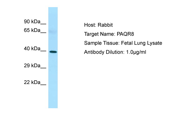 LMPB1 / PAQR8 Antibody -  This image was taken for the unconjugated form of this product. Other forms have not been tested.