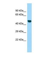 LOC304396 Antibody - Western blot of Rat Kidney. LOC304396 antibody dilution 1.0 ug/ml.  This image was taken for the unconjugated form of this product. Other forms have not been tested.