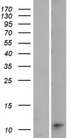 LOC642587 Protein - Western validation with an anti-DDK antibody * L: Control HEK293 lysate R: Over-expression lysate