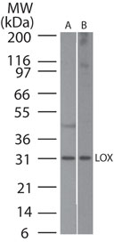 Western blot of LOX in A) human skin and B) mouse ear skin lysate using LS-C148572 at 1:500. Goat anti-rabbit Ig HRP secondary antibody, and PicoTect ECL substrate solution, were used for this test.