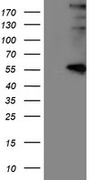LOX / Lysyl Oxidase Antibody - HEK293T cells were transfected with the pCMV6-ENTRY control (Left lane) or pCMV6-ENTRY LOX (Right lane) cDNA for 48 hrs and lysed. Equivalent amounts of cell lysates (5 ug per lane) were separated by SDS-PAGE and immunoblotted with anti-LOX.