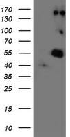HEK293T cells were transfected with the pCMV6-ENTRY control (Left lane) or pCMV6-ENTRY LOX (Right lane) cDNA for 48 hrs and lysed. Equivalent amounts of cell lysates (5 ug per lane) were separated by SDS-PAGE and immunoblotted with anti-LOX.