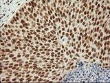 IHC of paraffin-embedded Carcinoma of Human bladder tissue using anti-LOX mouse monoclonal antibody.