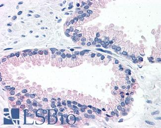 Anti-LOXL2 antibody LS-A9354 IHC of human prostate. Immunohistochemistry of formalin-fixed, paraffin-embedded tissue after heat-induced antigen retrieval.