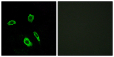Immunofluorescence analysis of LOVO cells, using EDG7 Antibody. The picture on the right is blocked with the synthesized peptide.