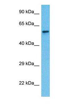 LPCAT1 / AYTL2 Antibody - Western blot of PCAT1 Antibody with human Fetal Lung lysate.  This image was taken for the unconjugated form of this product. Other forms have not been tested.