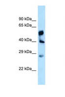 LPGAT1 Antibody - LPGAT1 antibody Western blot of Fetal Liver lysate. Antibody concentration 1 ug/ml.  This image was taken for the unconjugated form of this product. Other forms have not been tested.