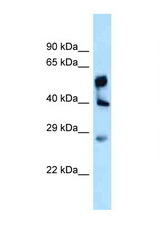 LPGAT1 antibody Western blot of Fetal Liver lysate. Antibody concentration 1 ug/ml.  This image was taken for the unconjugated form of this product. Other forms have not been tested.