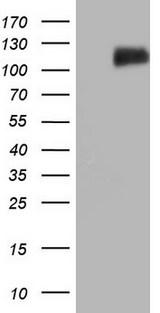 LPIN3 / Lipin-3 Antibody - HEK293T cells were transfected with the pCMV6-ENTRY control (Left lane) or pCMV6-ENTRY LPIN3 (Right lane) cDNA for 48 hrs and lysed. Equivalent amounts of cell lysates (5 ug per lane) were separated by SDS-PAGE and immunoblotted with anti-LPIN3.