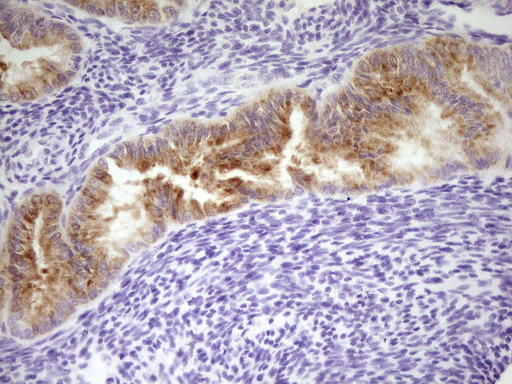 LPIN3 / Lipin-3 Antibody - Immunohistochemical staining of paraffin-embedded Human endometrium tissue within the normal limits using anti-LPIN3 mouse monoclonal antibody. (Heat-induced epitope retrieval by 1 mM EDTA in 10mM Tris, pH8.5, 120C for 3min,